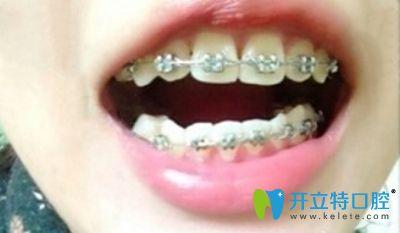 戴金属牙套矫正暴牙齿的术中照