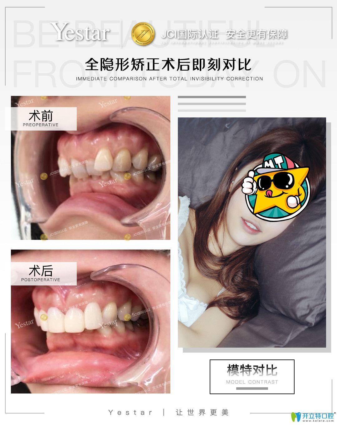 在宁波艺星口腔戴隐形牙套是什么感受,真实正畸经验分享