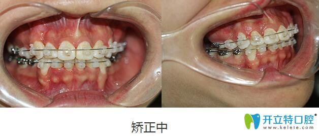 在深圳格伦菲尔口腔福田总店先后做了龅牙矫正和冷光美白