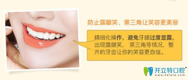 防止牙齿矫正过程中的露龈笑、黑三角