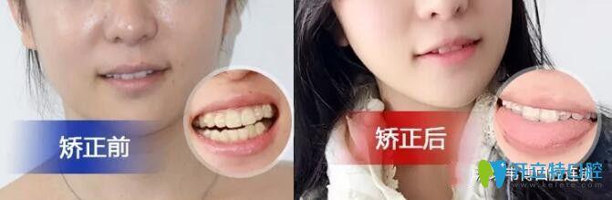 不了解深圳下沙韦博口腔怎么样可参考韦博牙齿矫正日记