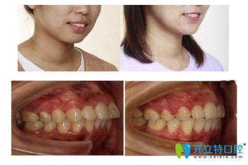 成都博爱口腔梁女士牙齿矫正前后对比图