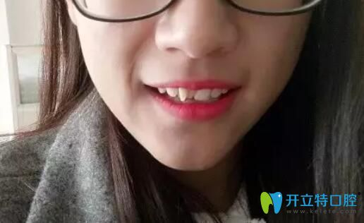 矫正多生牙对比图来啦,在宁波牙博士做钢丝矫正效果不赖