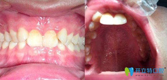 把在深圳韦博口腔做牙齿矫正的日记发布下,戴牙套1年啦!