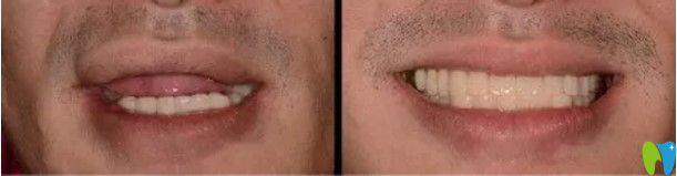 武汉德韩口腔医生顾客种植牙前后对比图