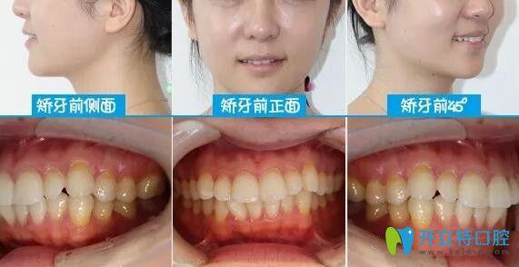 颜值逆袭!从深圳下沙韦博口腔戴隐适美牙套矫正龅牙开始