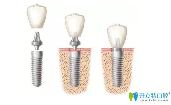 微创即刻种植牙技术图示