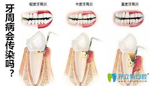 牙周病会传染给别人吗?医生说只要注意这4件事就远离牙周炎