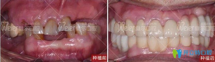 维尔口腔种植牙前后对比图