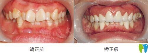 牙齿拥挤不齐在广大口腔做GA精准矫正效果