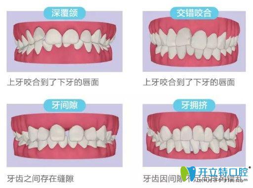 哪些人需要做美牙正畸呢?