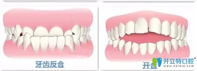 牙齿地包天和开合图示