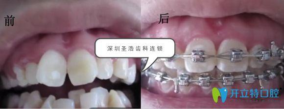 深圳圣浩齿科传统牙齿矫正案例效果