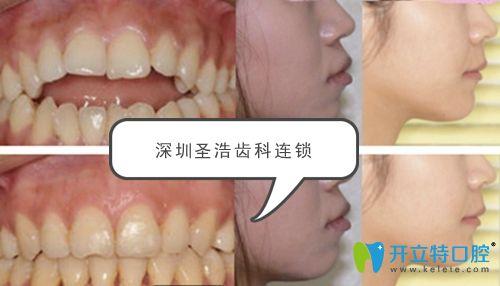 龅牙突嘴开颌矫正案例效果对比图