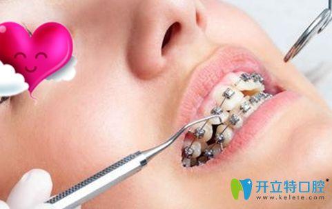 周晓颖医生表示牙齿矫正方案设计和医生操作都重要