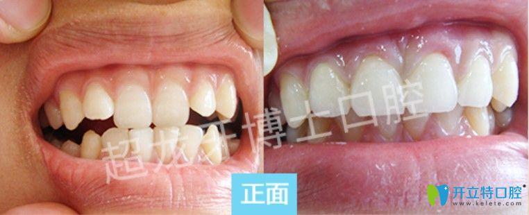 超龙牙博士口腔牙齿拥挤前凸矫正案例图
