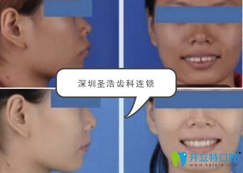 深圳圣浩齿科龅牙牙缝稀疏矫正前后效果