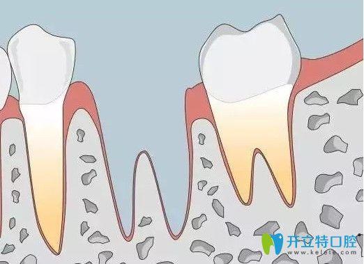 牙齿自体种植图片