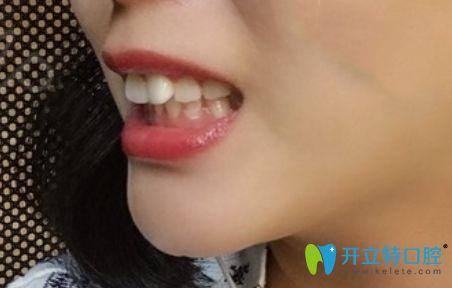 珠海牙齿矫正价格参差不齐,我在九龙口腔做隐形矫正是2万起