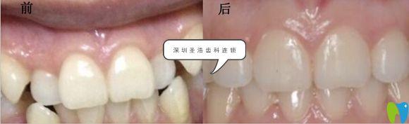圣浩齿科隐形牙齿矫正案例效果图