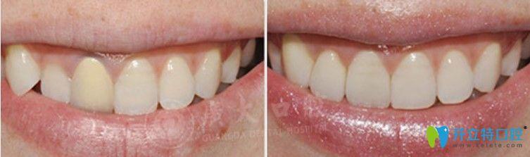 广大口腔牙贴面修复对比图