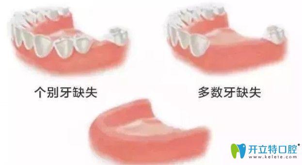 牙齿缺失情况图示