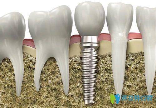 种植牙的并发症分为生物学并发症和机械并发症