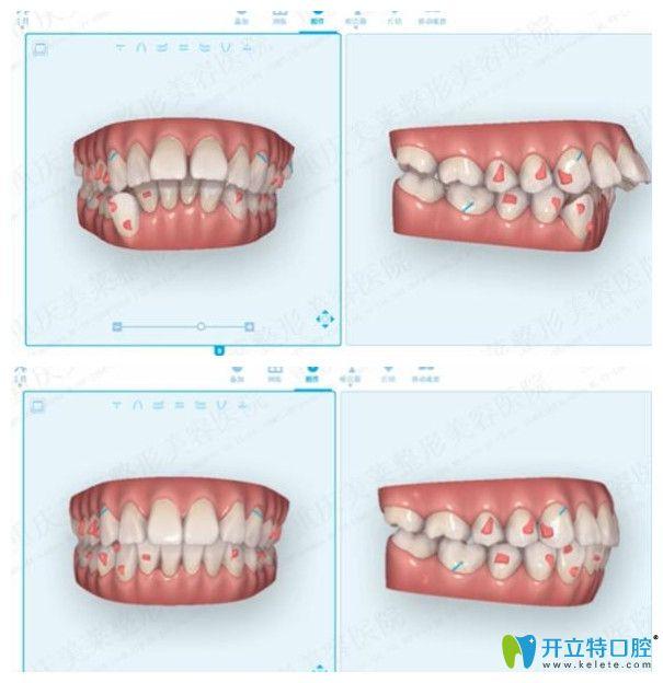 体验牙齿矫正黑科技口扫