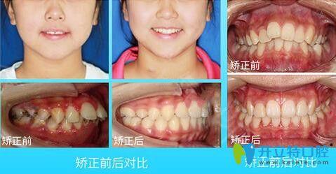 珠海九龙口腔龅牙矫正案例