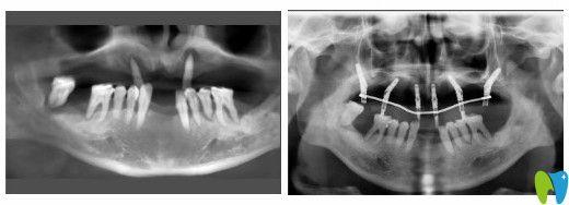 孙叔叔在苏州牙博士上颌植入6颗植体图