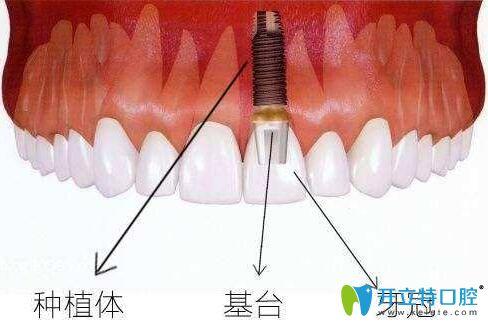 纯干货:种植牙全瓷基台和纯钛基台材料哪个好?价格差多少钱