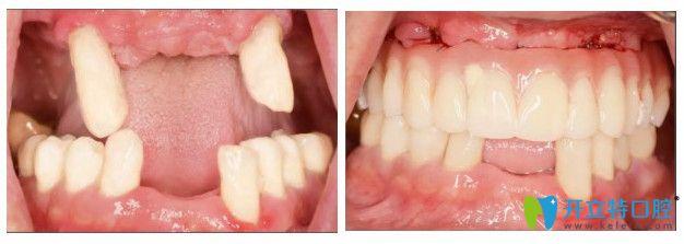 在没有来牙博士做种植牙之前的图片