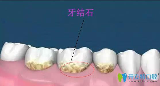 长了牙结石怎么办?简单实用的去牙石小偏方送给大家