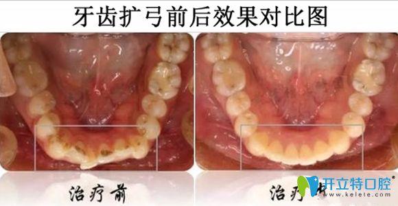 牙齿扩弓前后效果对比图