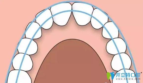 扩弓的作用就是为了让牙齿变的整齐