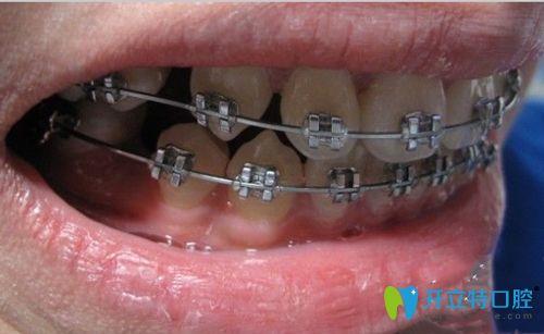 黄鹤明主任提醒大家要及时发现和处理牙齿问题