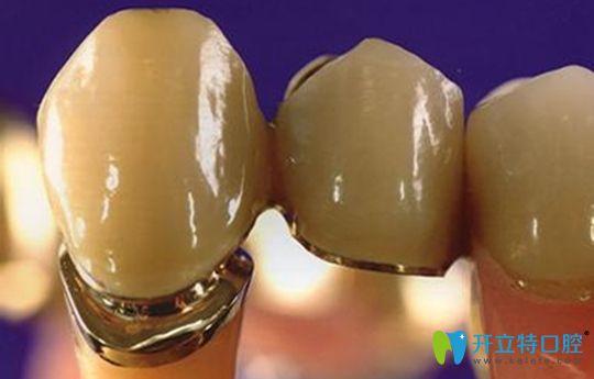 听说你在问:钯金烤瓷牙多少钱1颗,钯金牙和全瓷牙选哪个好