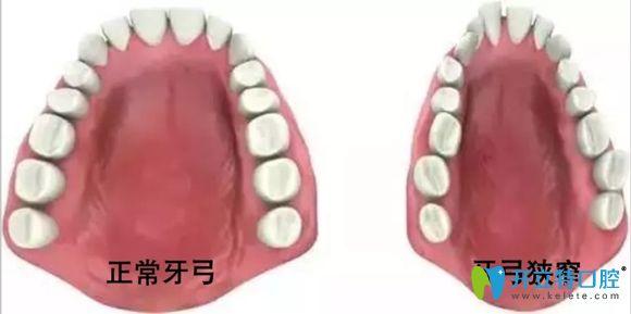 医生:同学说她扩弓十天脸变了,牙齿扩弓脸会变宽变大真的吗