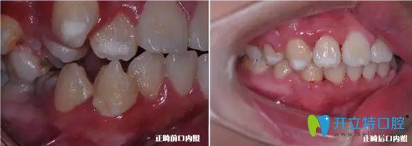 牙齿侧面正畸前后对比效果图