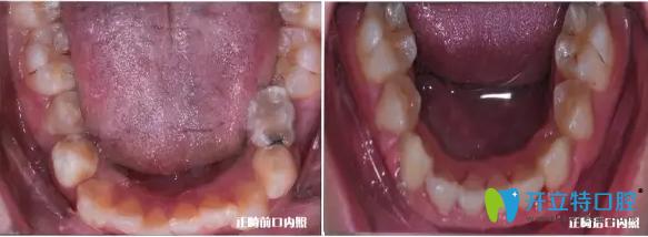 我儿子下牙颌内矫正前后的效果
