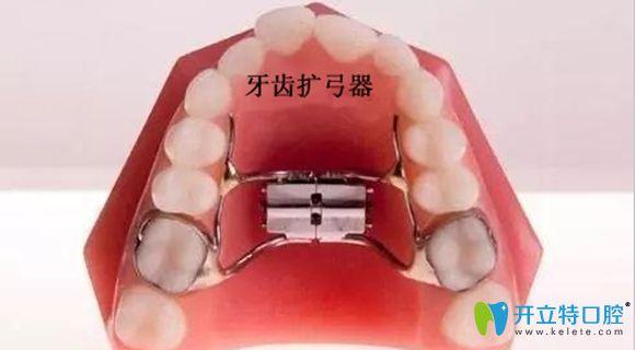 牙齿扩弓器展示图
