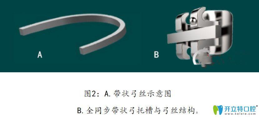 全同步带状弓矫治技术原理