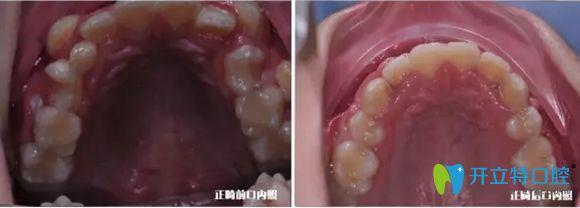 听说在杭州儿童牙齿矫正可靠的要属美奥口腔,体验后来分享