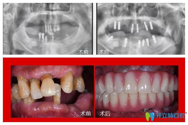 75岁郭老在广州广大口腔做了全口种植牙1年多后来反馈感受