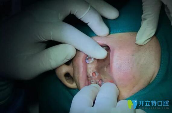 武汉清华阳光口腔种植牙手术过程