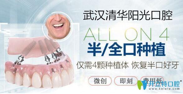 武汉清华阳光口腔ALLON4种植牙