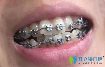 听说深圳南山区好的牙科是好佰年口腔,正畸体验后来分享