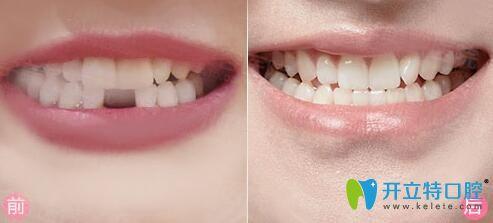 重庆牙博士口腔种植牙案例