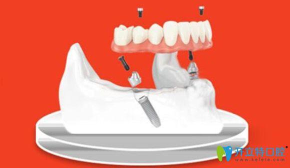 新乡拜博口腔2颗种植体就可修复半口牙