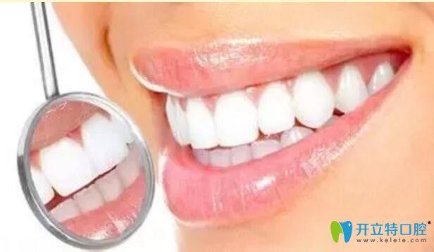昆明雅度口腔牙齿美白效果图